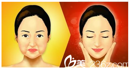 北京丽都整形美容医院嘴角下垂图