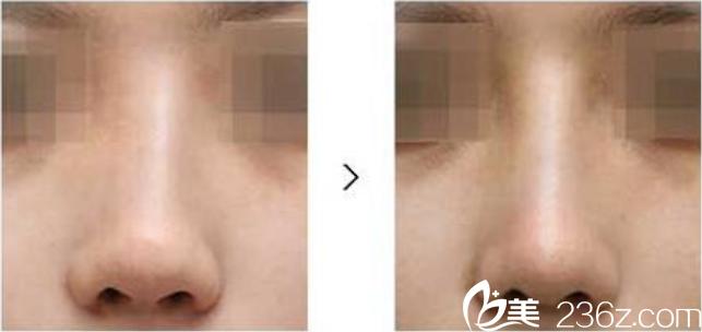 隆鼻后遗症假体移位不稳定