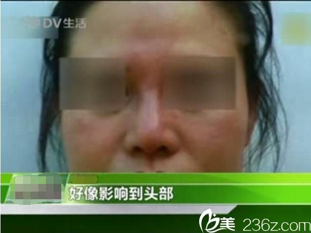 隆鼻后遗症假体排斥红肿