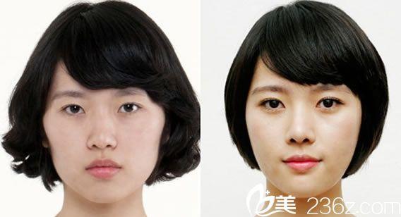 黄良飞医师的面部整形案例