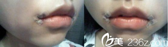 北京丽都医院微笑唇真人案例手术刚结束的时候