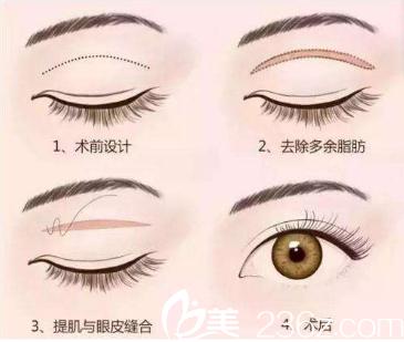北京丽都整形医院切开双眼皮表现图