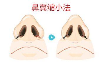 鼻翼整形方法之一鼻翼缩小法