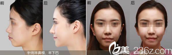 台湾李久恒博士玻尿酸隆鼻和丰下巴案例效果图