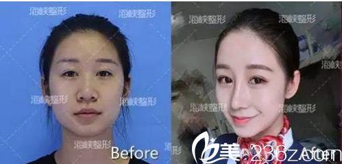 济南海峡医院假体隆鼻手术效果