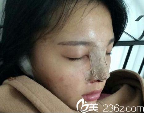 济南海峡医院假体隆鼻手术当天后的照片