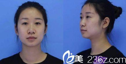济南海峡医院假体隆鼻手术术前图片