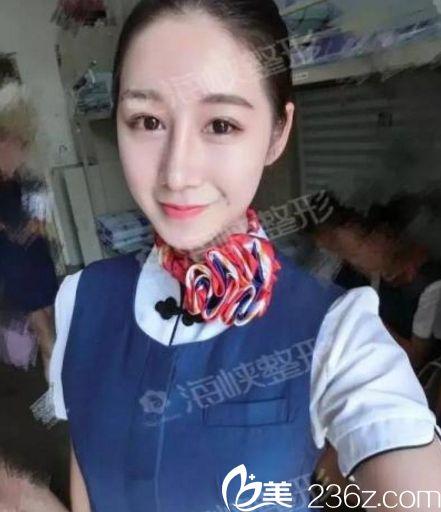 济南海峡医院假体隆鼻手术一个月后效果