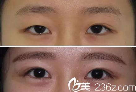 北京黄寺美容外科医院汪立川—眼部案例