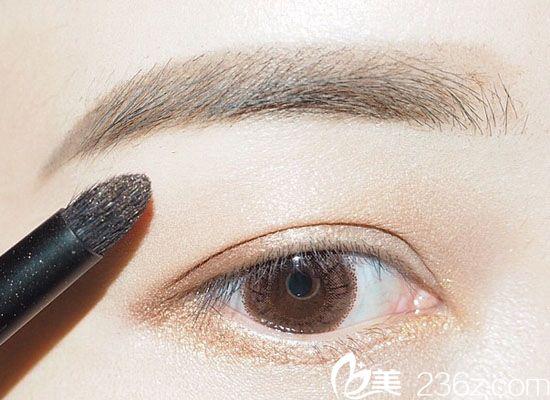 韩国will医院——双眼皮手术改善眼部形态