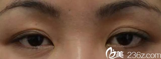 韩国will医院——上睑皮肤下垂变成三眼皮