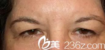 上睑皮肤下垂变成三角眼——韩国will医院