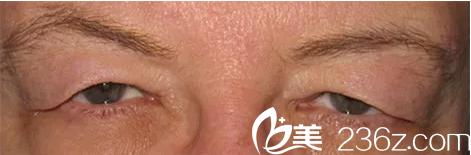 上睑皮肤松弛下垂影响视力——韩国will医院