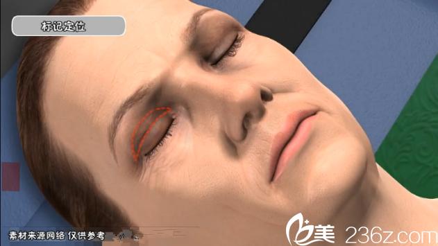 上睑皮肤松弛下垂——切开双眼皮法——韩国will医院魏亨坤