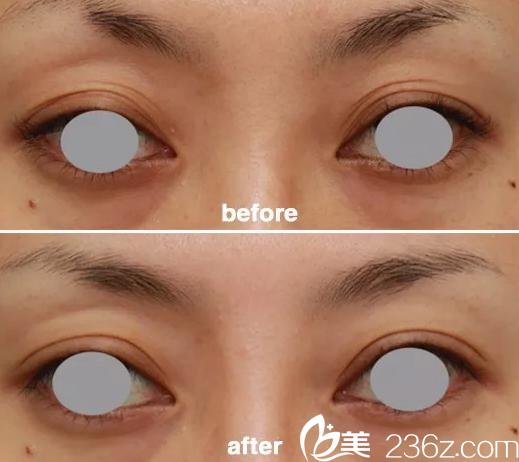 上睑皮肤松弛下垂——韩国will医院双眼皮切开案例