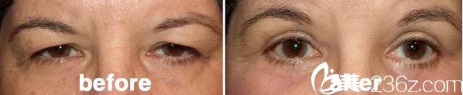 上睑皮肤松弛下垂—韩国will医院——改善眼部形态