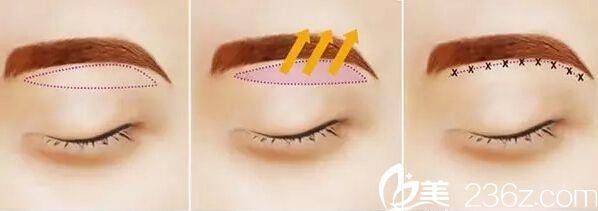 韩国will医院切眉手术方法示意图