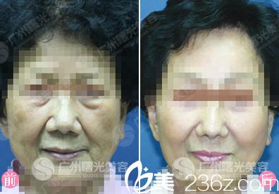 广州曙光蒋晟中面部拉皮术案例对比图