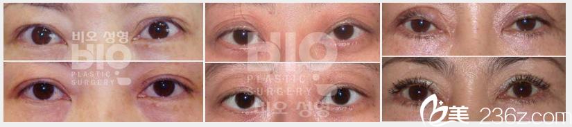 韩国bio曹仁昌院长做的双眼皮失败修复案例对比图