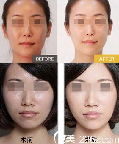 林琦医生的皮肤美容案例图