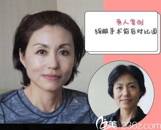 谢红权医生面部线雕手术案例