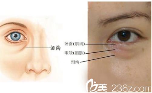 北京奥斯卡医疗美容医院眼袋示意图