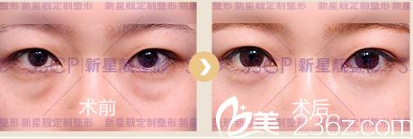 北京奥斯卡医院祛眼袋案例