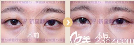 北京奥斯卡医院刘风卓无痕祛眼袋案例