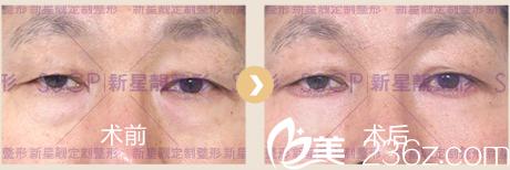 北京奥斯卡医院去眼袋案例