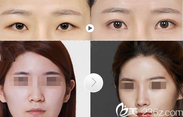 张潮院长双眼皮和假体隆鼻案例