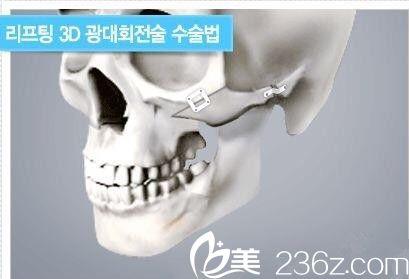 颧骨整形方式
