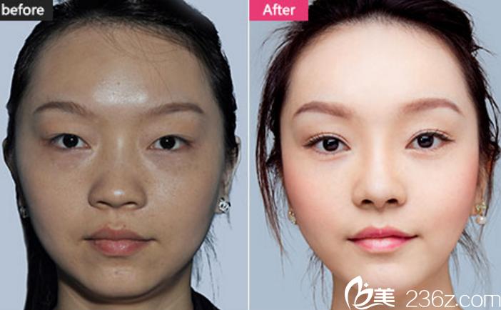 长沙美莱隆鼻+双眼皮+瘦脸针真人案例