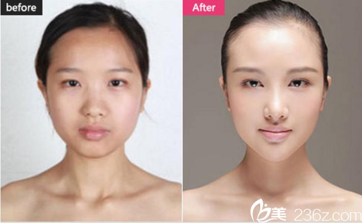 长沙美莱双眼皮+隆鼻+自体脂肪填充真人案例