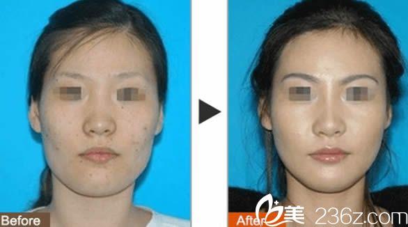 蒋晓玲激光祛斑前后对比图