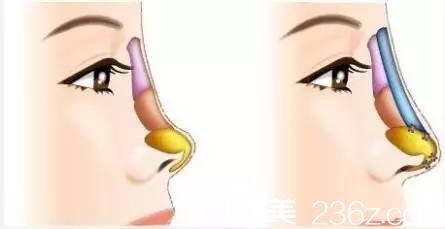 单纯的隆鼻只是增高鼻背,不会改变鼻子整体形态
