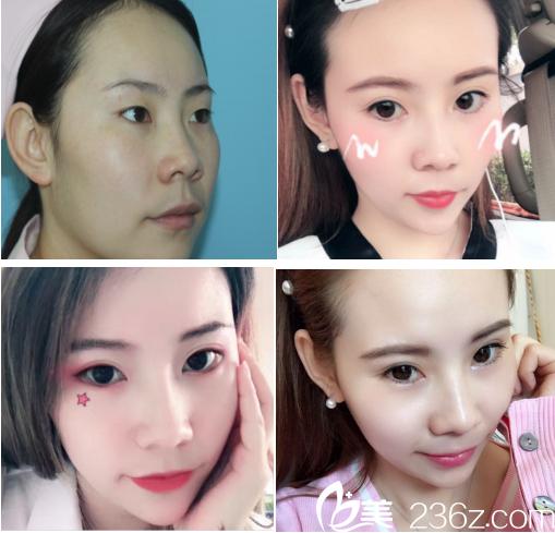 青岛壹美整形医院埋线双眼皮手术案例