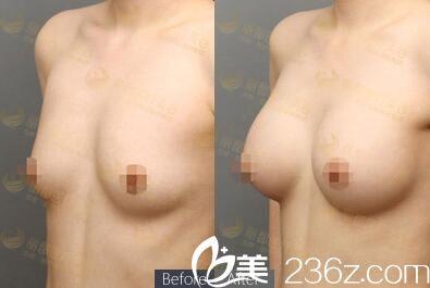 上海时光整形医院和北京丽都美容医院哪家隆胸做的好?