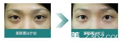 治疗黑眼圈真人案例