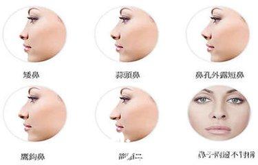 隆鼻只是单纯改变鼻子的形态?