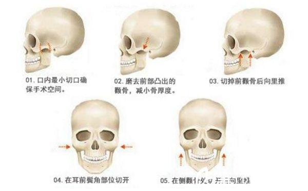 颧骨整形 颧骨降低