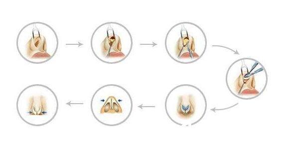 西安美立方医疗美容医院隆鼻过程