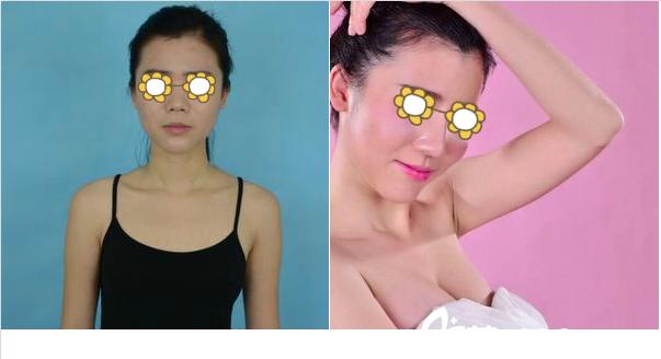 南宁梦想黎洪棉自体脂肪隆胸案例