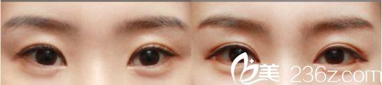 沈阳名流医院双眼皮自然型真人案例