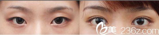 沈阳名流医院新月型双眼皮案例