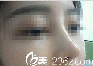 进行鼻修复手术后的鼻子