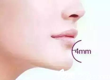 嘴唇与下巴之间有明显的唇沟