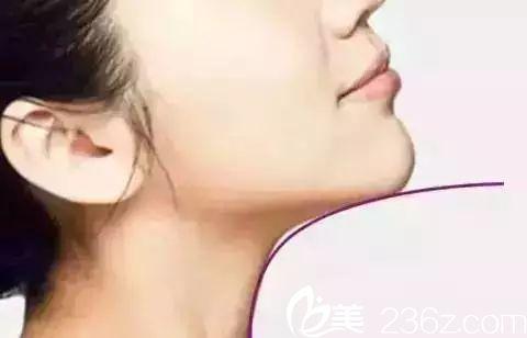 下巴与脖子有一定的曲线