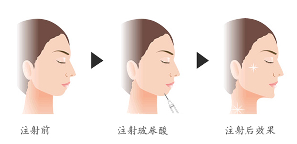 玻尿酸注射丰下巴