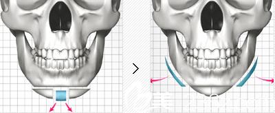 原辰切骨手术打造完美下巴