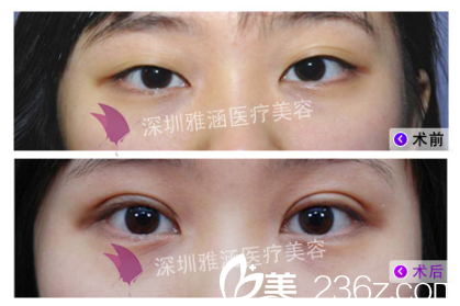 侯文明做眼睛怎么样?看双眼皮案例对比图
